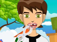 Ben10 no Dentista