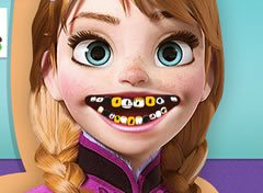 Frozen Princesa Anna no Dentista 2