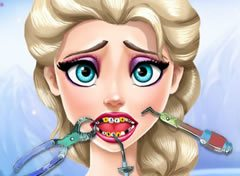 Frozen Princesa Elsa no Dentista